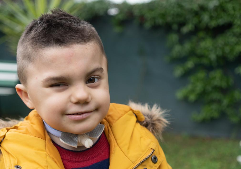 Primo piano di Leonardo, bambino con sindrome di Charge, protagonista dello spot per la campagna della donazioni regolari