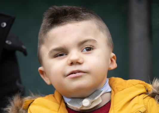 Ritratto di Leonardo, bambino affetto dalla sindrome di Charge, seguito dalla Lega del Filo d'Oro. Foto in primo piano.